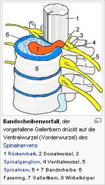 Bandscheibenvorfall, der vorgefallene Gallertkern drückt auf die Ventralwurzel (Vorderwurzel) des Spinalnervens
