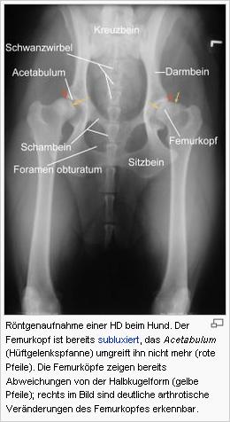 Röntgenaufnahme einer Hüftdysplasie